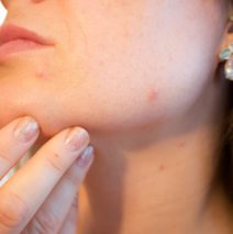 Se débarasser de l'acné grâce à l'huile de nigelle